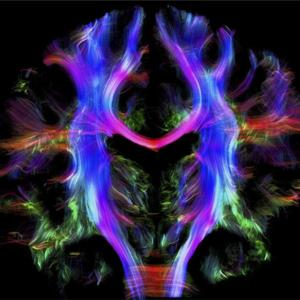 De la estimulación de neuronas a través de la luz a la inteligencia artificial para analizar resonancias magnéticas
